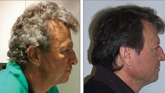 הרופאים הופתעו לגלות: שיער אפור הפך שחור