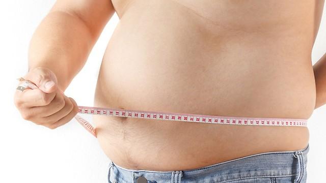 הנזקים הבריאותיים של ההשמנה (צילום: shutterstock) (צילום: shutterstock)
