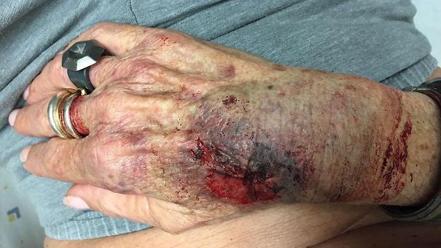 הפציעה של אסתר שלומוביץ. לא חזרה לשגרה ()