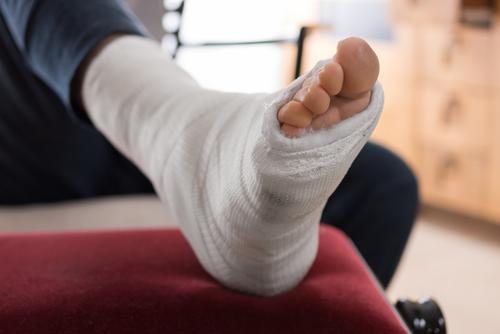 Подвернула ногу на экскурсии - и получит пособие для инвалидов труда