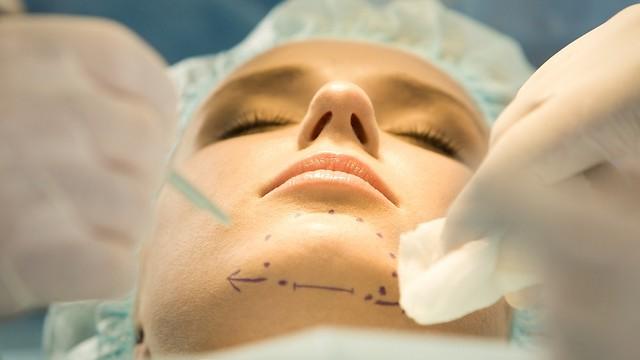 ניתוח מתיחת עור. השיטה הקלאסית (צילום: shutterstock)