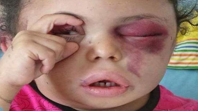 בות'יינה א-רימי, 8 מבני משפחתה נהרגו בתקיפה