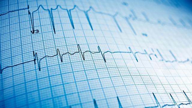 אפקט מגן מפני מחלות לב. לא בטוח (צילום: shuttetrstock) (צילום: shuttetrstock)