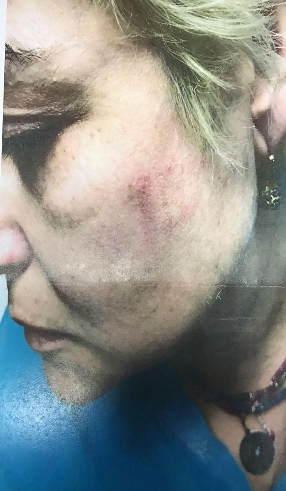 """מרינה לאחר התקיפה הקשה (צילום: דוברות רמב""""ם) (צילום: דוברות רמב"""