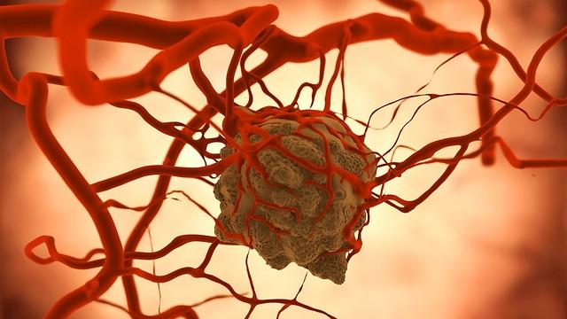 תאי הסרטן נסחפים בכלי הדם ויוצרים גידול משני. גרורות (צילום: shutterstock)