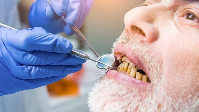 הרס מתקדם של השיניים והחניכיים. השפעות העישון (צילום: shutterstock)