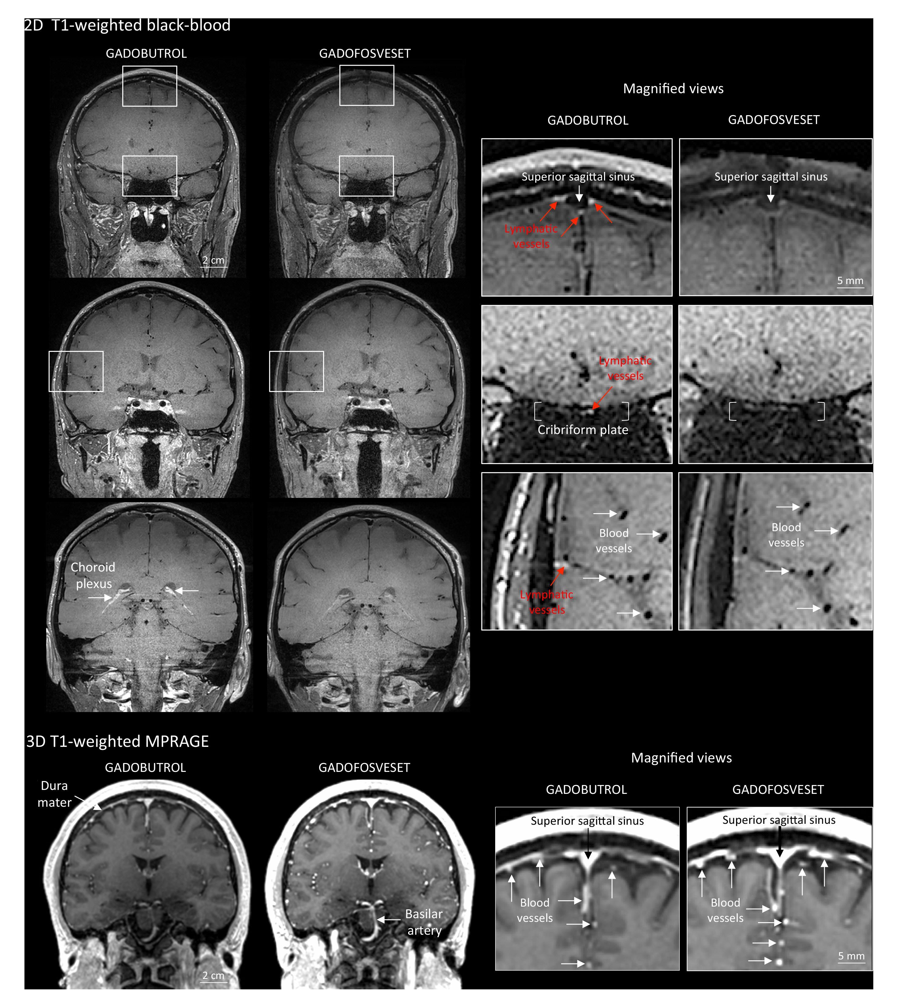 סריקות ה-MRI. מערכת הלימפה מסומנת באדום