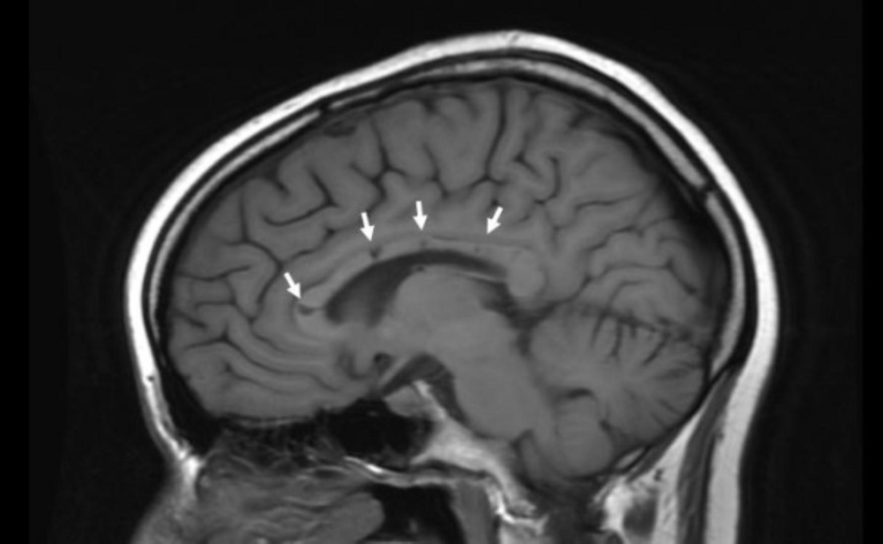 כך נראה מוחו של חולה סוסק ( )