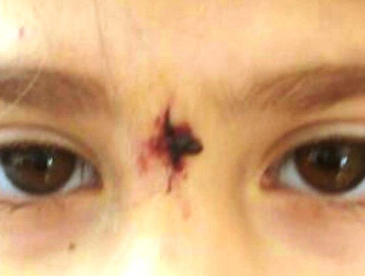 הילדה שנפצעה מהכלבה ()
