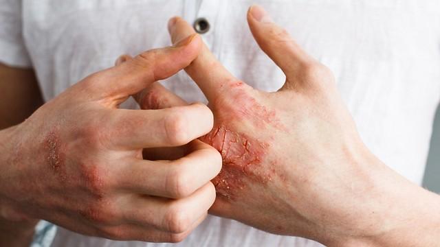 פסוריאזיס. תופעות לוואי בשל המחלה (ציום: shutterstock) (ציום: shutterstock)