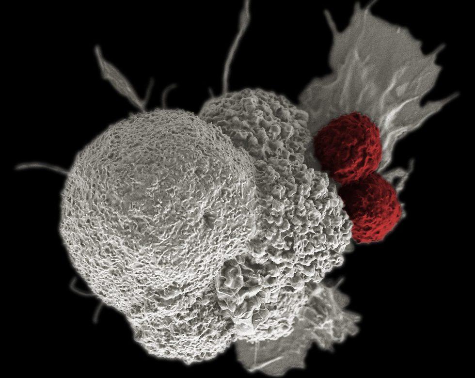 תא סרטן (בלבן) שמותקף על ידי שני תאי T  (צילום: Rita Elena Serda, Duncan Comprehensive Cancer Center at Baylor College of Medicine, Nationa)