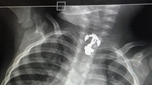 התליון בוושט של הפעוט, כפי שנראה בצילום הרנטגן. לא היה חשד לבליעה