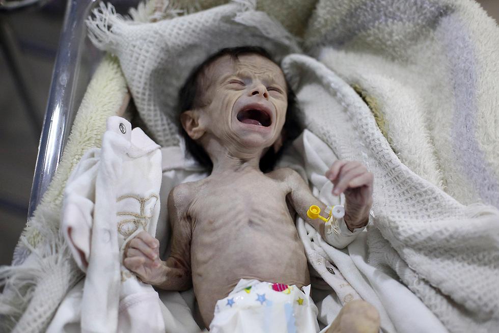 תינוקת סורית הסובלת מתת-תזונה קשה מטופלת בפרברי דמשק (צילום: AFP)