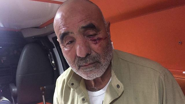 A man allegedly suffered eye injuries when assaulted by police (Photo: Hilal Badir)