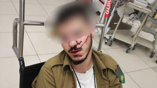 The assaulted Druze soldier after the attack