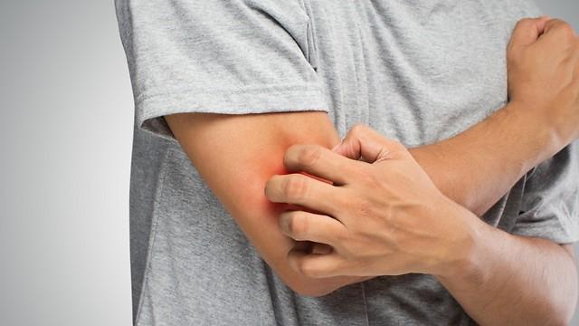 לא רק אלרגיה. גרד בעור (צילום: shutterstock)