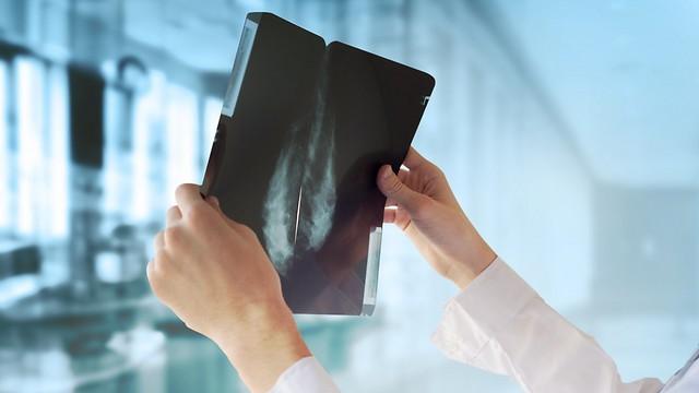סרטן השד. בדיקות שאמורות לסייע בגילוי המחלה באופן ברור (צילום: shutterstock)