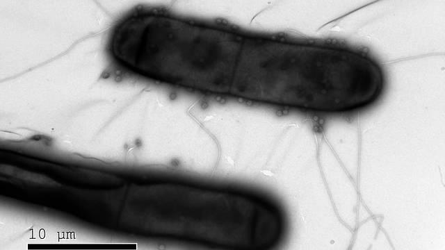 נגיפים (נראים בתמונה כעיגולים קטנים) תוקפים חיידקים. מערכות חיסון מתוחכמות (צילום: מסע הקסם המדעי, מכון ויצמן)