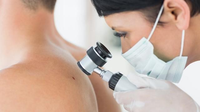 בדיקות תקופותיות על ידי רופאת עור או כירורגית פלסטית. מניעת סרטן העור (צילום: shutterstock) (צילום: shutterstock)