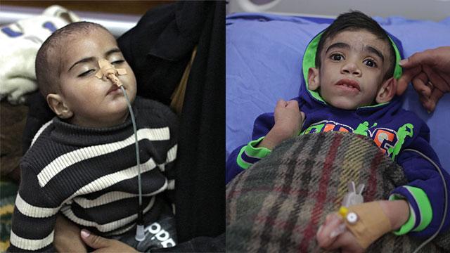 Terminally ill children in Gaza hospitals (Photo: EPA)