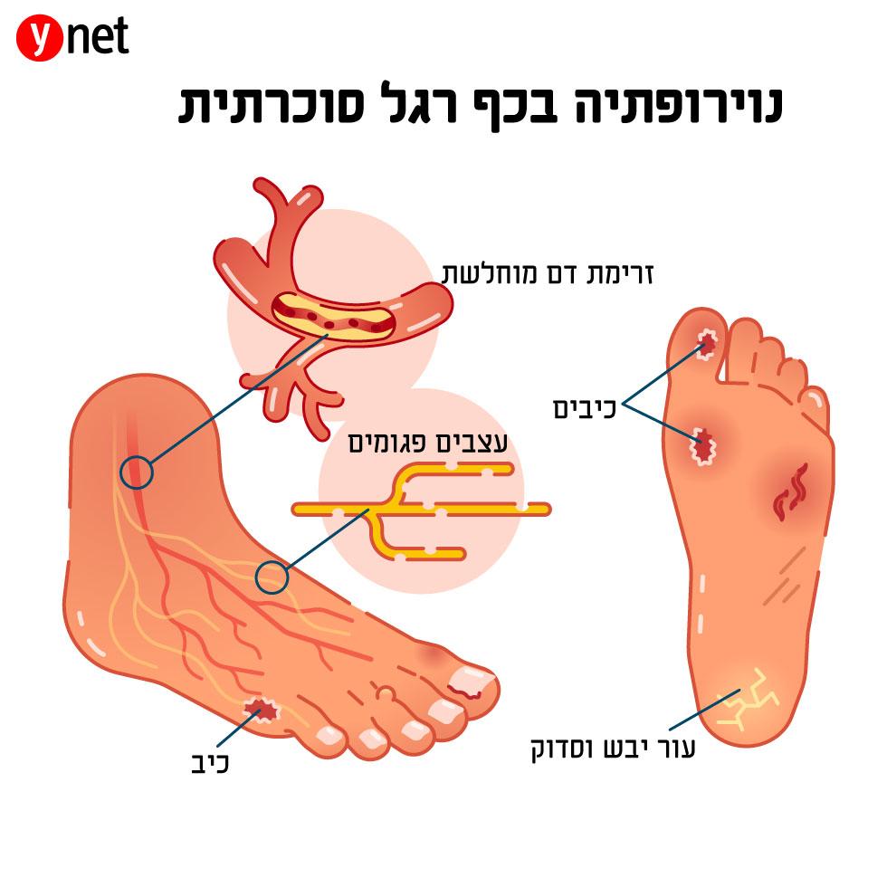 המלחמה על הרגל: איך למנוע כריתת גפיים בחולי סוכרת Untitled-2