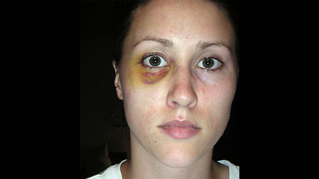אשתו לשעבר של פורטר עם פנס בעין לאחר שתקף אותה ()