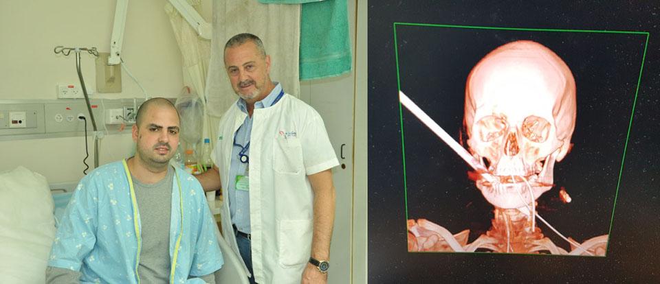 """Нетанэль, доктор Мойгар и рентген перед операцией. Фото: Эли Дадон (больница """"Кармель"""")"""