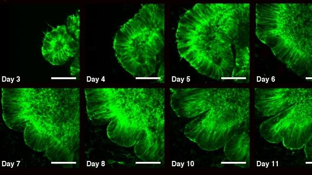 11 ימים במעבדה: התפתחות אורגנואיד המוח והופעת הקפלים החל בשבוע השני  (צילום: מכון ויצמן למדע) (צילום: מכון ויצמן למדע)