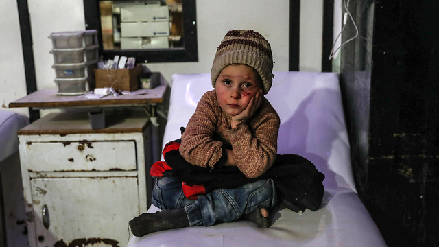 A wounded Syrian child in eastern Ghouta (Photo: EPA)