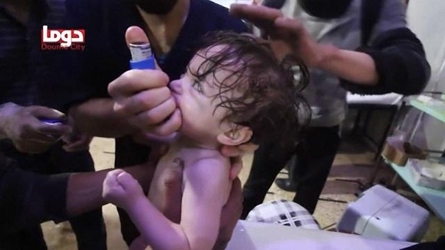 Children treated after alleged chemical attack in Douma
