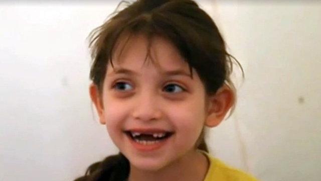 ילדה ששרדה את הטבח הכימי ב דומא סוריה  ()