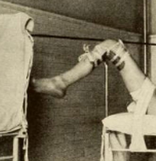 כך נקשרו הנשים לקראת הלידה (צילום: מתוך הספר Scopolamine-Morphine Anasesthesia)