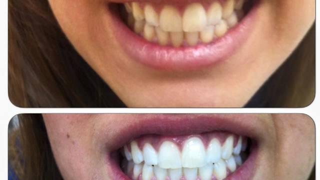 חיוך לפני ואחרי (צילום: באדיבות סמייל קליניק)