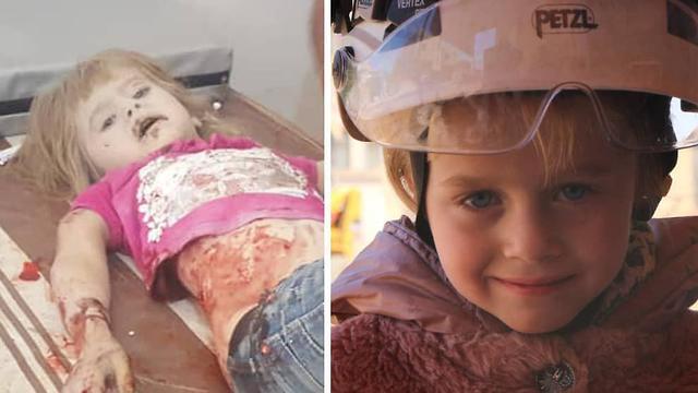 סוריה הפצצות לחימה דרעא הדיא ילדה בת 5 נפצעה ()