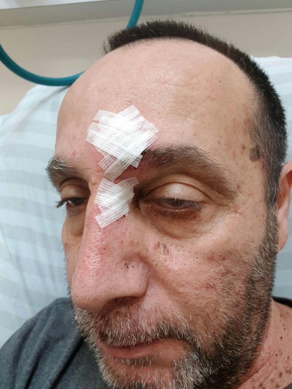 מאיר כהן נהג מונית ש קיבל מכות קטטה אלימות ב באר שבע ()