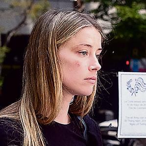 תלונות על אלימות. אמבר הרד, אשתו לשעבר של דפ בפנים חבולות