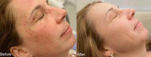 """הורדת כתמים בעור עם מכשיר הלייזר M2 (צילום: ד""""ר עמי אייל)"""