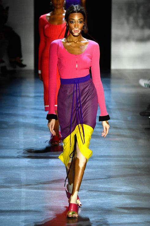 הביאה את מחלת העור ויטיליגו לתודעה של עולם האופנה. וויני הארלו (צילום: Mark Thompson/GettyimagesIL)