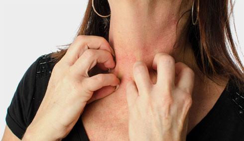 תרופות נגד אלרגיה שייכות למשפחת התרופות האנטי-היסטמיניות, ועלולות להביא לעלייה במשקל (צילום: Shutterstock)