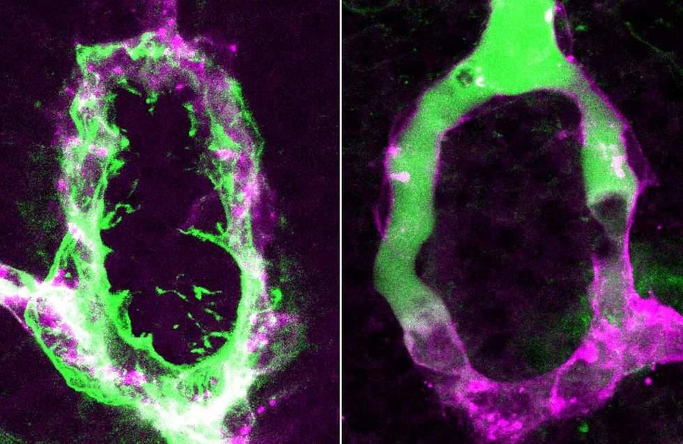 כלי דם בבלוטת יותרת המוח של דג הזברה לפני חסימת החדירות שלהן (משמאל) ולאחריה (מימין) (צילום: מסע הקסם המדעי, מכון ויצמן)