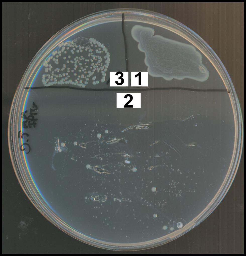 חלבונים וחיידקים (ההסבר בהמשך הכתבה) ()