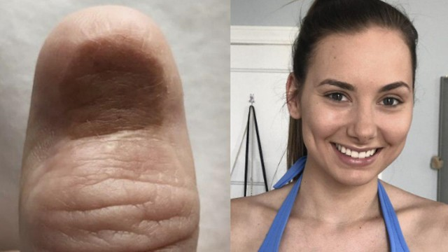 Каролина Яско и пострадавший палец