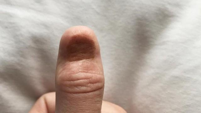 Так выглядит палец Каролины после операции по удалению меланомы