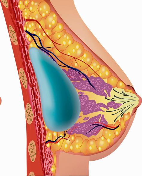 """הדמיה של שתל תקין. חוקרים קבעו ששתל עלול """"לדמם"""" אל תוך הגוף – כלומר שמולקולות של הסיליקון עוברות דרכו גם כאשר אין בו קרע"""