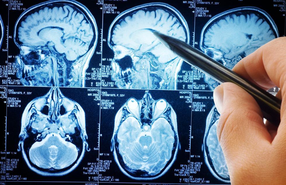 הדמיית MRI למוח אדם (צילום: shutterstock)