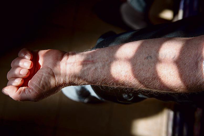 שאול אבן רם ביקש לצלם רק את המספר על הזרוע | צילום: אלכס קולומויסקי