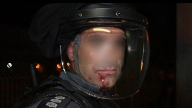 שוטר שנפגע בתחנת זבולון ()