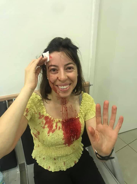 נטע שפיר שנפצעה במהלך הפגנות יוצאי העדה האתיופית ()