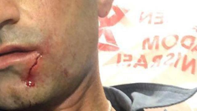 פציעת שוטר מתחנת זבולון בחיפה בעקבות ההפגנות (צילום: דוברות המשטרה)