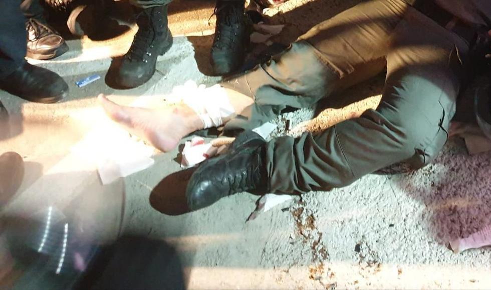 Раненый полицейский. Фото: пресс-служба полиции